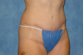 After Photo - Tummy Tuck - Case #15969 - Tummy Tuck 7 - Oblique View