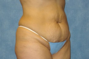 Before Photo - Tummy Tuck - Case #15970 - Abdominoplasty 8 - Oblique View