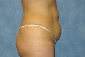 Before Photo - Tummy Tuck - Case #15970 - Abdominoplasty 8 - Lateral View