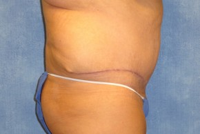 After Photo - Tummy Tuck - Case #15971 - Abdominoplasty 12 - Lateral View