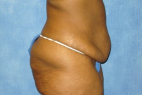 Before Photo - Tummy Tuck - Case #15972 - Tummy Tuck 17 - Lateral View