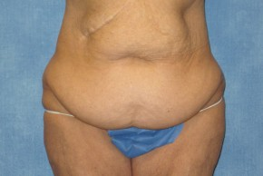 Before Photo - Tummy Tuck - Case #15975 - Tummy Tuck 21 - Frontal View