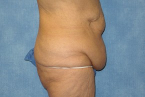 Before Photo - Tummy Tuck - Case #15975 - Tummy Tuck 21 - Lateral View