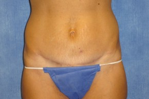 After Photo - Tummy Tuck - Case #15976 - Tummy Tuck 23 - Frontal View