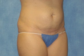 Before Photo - Tummy Tuck - Case #15977 - Abdominoplasty 26 - Frontal View
