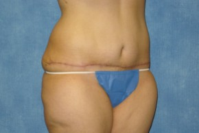 After Photo - Tummy Tuck - Case #15978 - Tummy Tuck 27 - Oblique View
