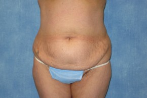 Before Photo - Tummy Tuck - Case #15980 - Tummy Tuck 30 - Frontal View