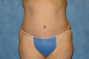 After Photo - Tummy Tuck - Case #15980 - Tummy Tuck 30 - Frontal View