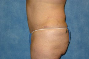 After Photo - Tummy Tuck - Case #15980 - Tummy Tuck 30 - Lateral View