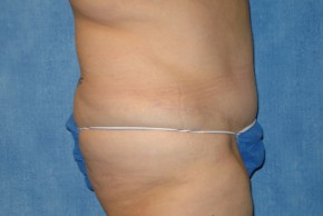 After Photo - Tummy Tuck - Case #15981 - Abdominoplasty 33 - Lateral View