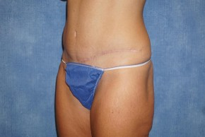 After Photo - Liposuction - Case #14674 - Lipo & Tummy Tuck 35 - Oblique View