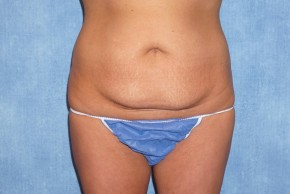 Before Photo - Tummy Tuck - Case #15982 - Tummy Tuck 36 - Frontal View