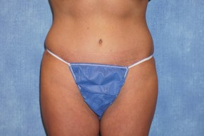 After Photo - Tummy Tuck - Case #15982 - Tummy Tuck 36 - Frontal View