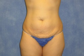 Before Photo - Tummy Tuck - Case #15983 - Tummy Tuck 38 - Frontal View