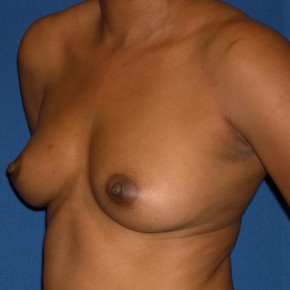 Before Photo - Breast Augmentation - Case #15987 - Breast Aug. with Saline Implants  - Oblique View