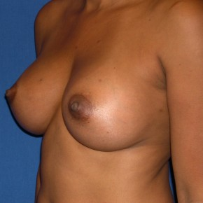 After Photo - Breast Augmentation - Case #15987 - Breast Aug. with Saline Implants  - Oblique View