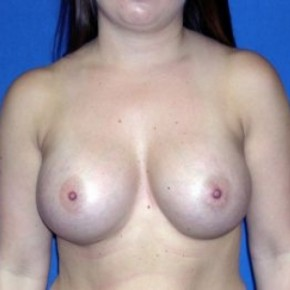 After Photo - Breast Augmentation - Case #15988 - Breast Aug. with Silicone Implants  - Frontal View