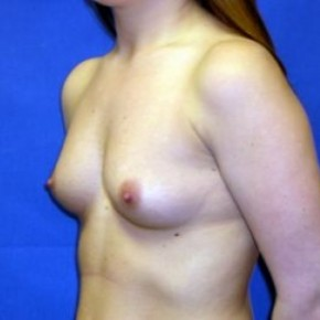 Before Photo - Breast Augmentation - Case #15988 - Breast Aug. with Silicone Implants  - Oblique View