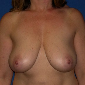 Before Photo - Breast Lift - Case #15992 - Frontal View