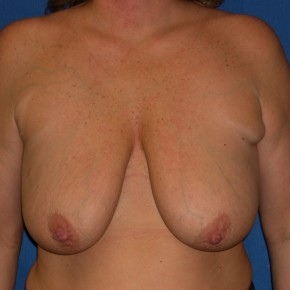 Before Photo - Breast Lift - Case #15993 - Breast Lift with Aug (Saline Implants)  - Frontal View