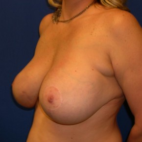 After Photo - Breast Lift - Case #15993 - Breast Lift with Aug (Saline Implants)  - Oblique View