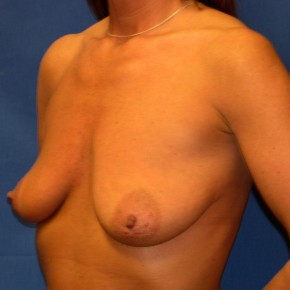 Before Photo - Breast Lift - Case #15996 - Breast Lift with Aug (Silicone Implants)  - Oblique View