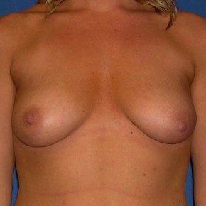 Before Photo - Breast Lift - Case #15997 - Breast Lift with Aug (Saline)  - Frontal View