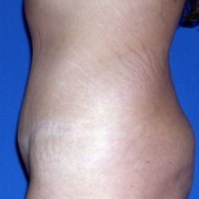 After Photo - Breast Lift - Case #15998 - Tummy Tuck  - Oblique View