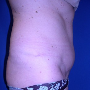 After Photo - Tummy Tuck - Case #15999 - Lateral View