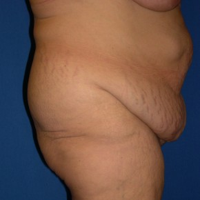 Before Photo - Tummy Tuck - Case #16002 - Lateral View