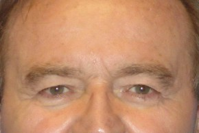 Before Photo - Eyelid Surgery - Case #16016 - Blepharoplasty 25 - Frontal View