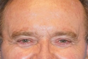 After Photo - Eyelid Surgery - Case #16016 - Blepharoplasty 25 - Frontal View