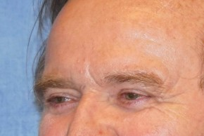 After Photo - Eyelid Surgery - Case #16016 - Blepharoplasty 25 - Oblique View
