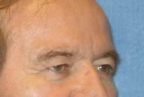 Before Photo - Eyelid Surgery - Case #16016 - Blepharoplasty 25 - Lateral View