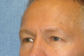 Before Photo - Eyelid Surgery - Case #16017 - Blepharoplasty 5 - Oblique View