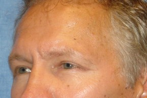 After Photo - Eyelid Surgery - Case #16017 - Blepharoplasty 5 - Oblique View