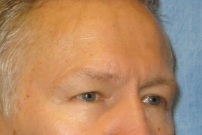 Before Photo - Eyelid Surgery - Case #16017 - Blepharoplasty 5 - Lateral View