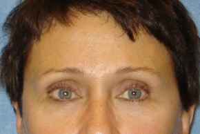 After Photo - Brow Lift - Case #16018 - Brow Lift/Eyelid Surgery 9 - Frontal View