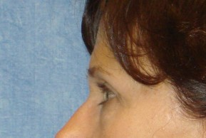 Before Photo - Brow Lift - Case #16018 - Brow Lift/Eyelid Surgery 9 - Lateral View