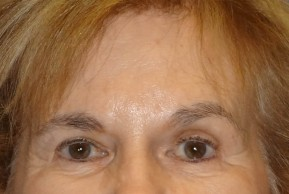 After Photo - Brow Lift - Case #16019 - Brow Lift/Eyelid Surgery 11 - Frontal View