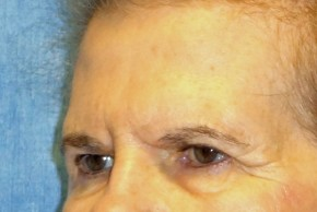 Before Photo - Brow Lift - Case #16019 - Brow Lift/Eyelid Surgery 11 - Oblique View