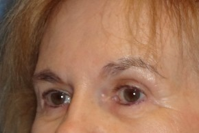 After Photo - Brow Lift - Case #16019 - Brow Lift/Eyelid Surgery 11 - Oblique View