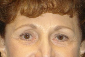 After Photo - Brow Lift - Case #16020 - Forehead Brow Lift 14 - Frontal View