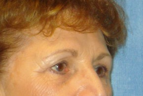 Before Photo - Brow Lift - Case #16020 - Forehead Brow Lift 14 - Oblique View