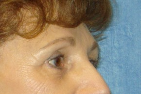 After Photo - Brow Lift - Case #16020 - Forehead Brow Lift 14 - Oblique View