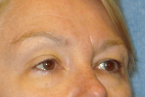Before Photo - Brow Lift - Case #16022 - Forehead Brow Lift 20 - Oblique View