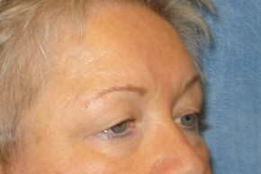 Before Photo - Eyelid Surgery - Case #16023 - Forehead Brow Lift 18 - Oblique View