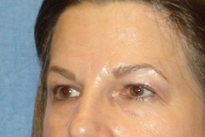 Before Photo - Eyelid Surgery - Case #16024 - Brow Lift & Bleph 22 - Lateral View