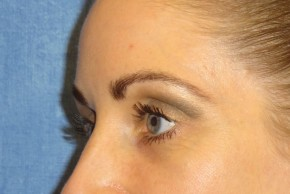After Photo - Eyelid Surgery - Case #16025 - Lower Eyelid Surgery 23 - Lateral View