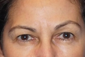 Before Photo - Eyelid Surgery - Case #16026 - Eyelid/Brow Lift 24 - Frontal View